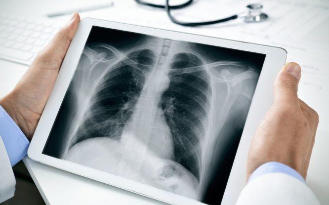 Нейросеть научили распознавать ковид по рентгеновским снимкам